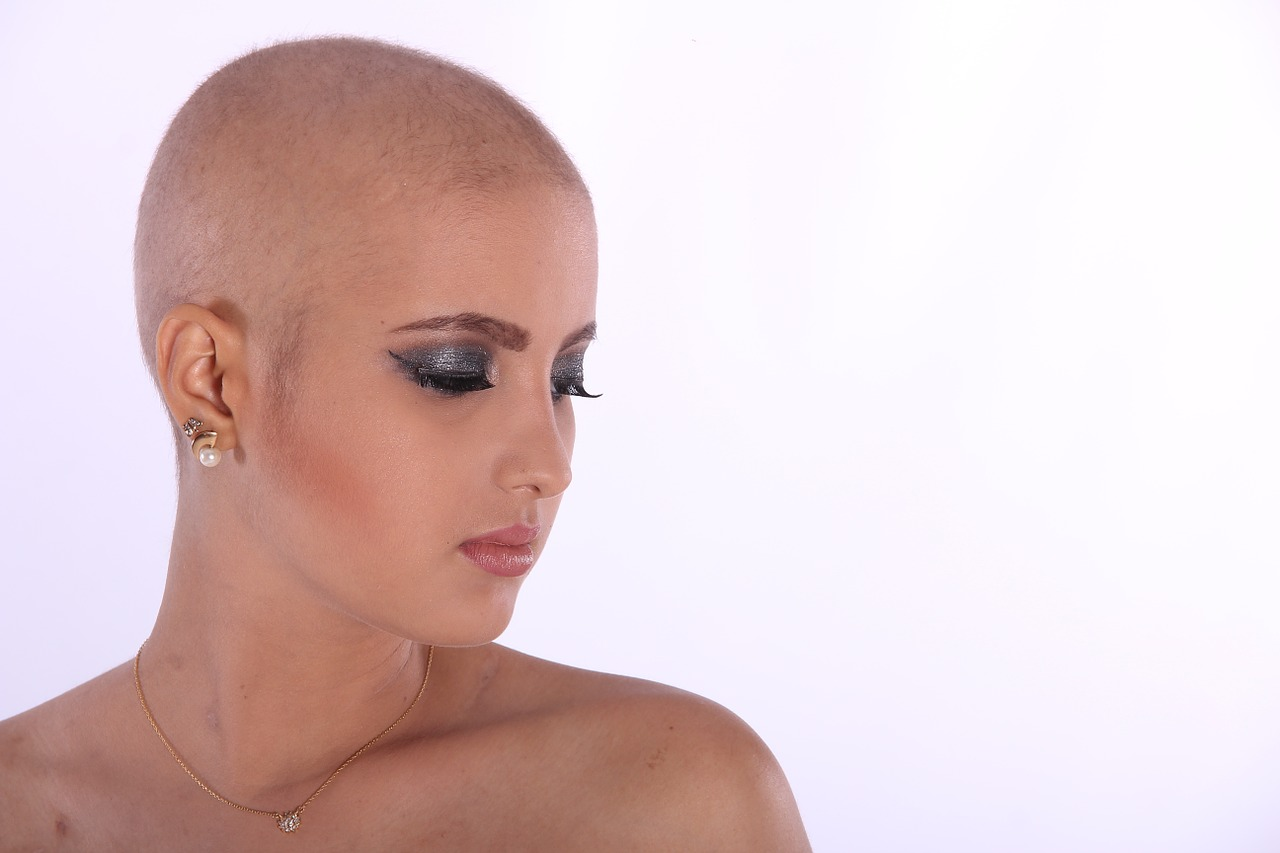 ALOPECJANKI – historie łysych kobiet